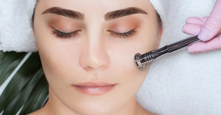 microdermabrasion contre acné